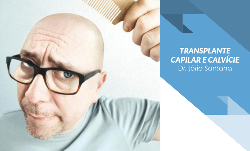 Calvície e Transplante Capilar