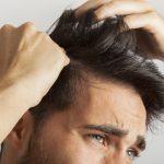 Alopecia cicatricial: saiba tudo sobre