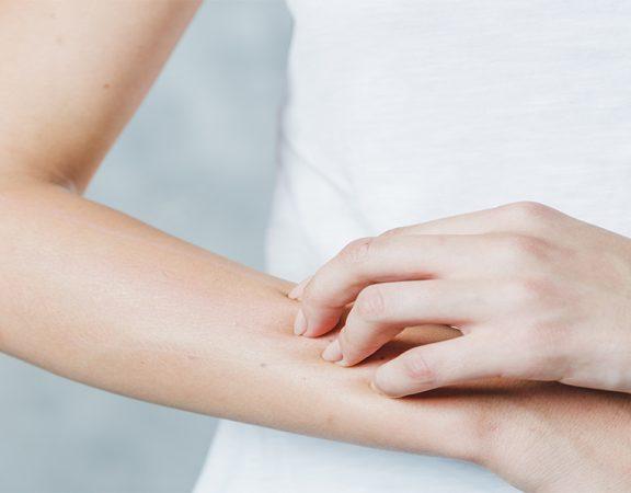 A dermatofitose é uma doença causada por fungos ou cogumelos. No artigo de hoje, explicarei sobre as causas, tipos e tratamentos dessa doença de pele.